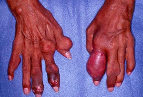 Severe gout in the fingers results in large, hard deposits of crystals of uric acid. These deposits are called tophi.