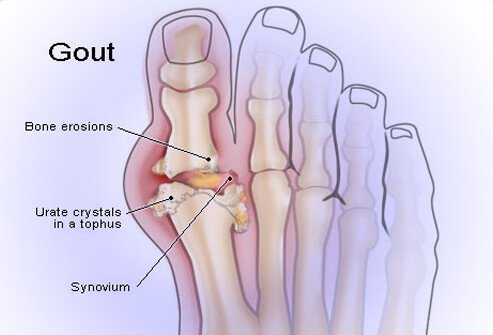 Gouty arthritis is a painful condition that results from crystals of uric acid depositing in joint tissues, causing attacks of joint inflammation (arthritis).