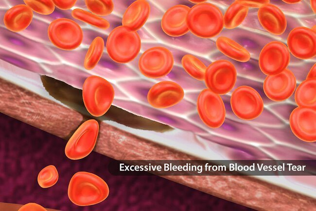 A missing or faulty protein causes von willebrand disease.