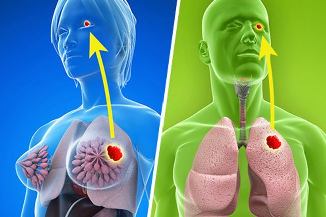 Certain types of cancers may start elsewhere and spread to the eye.