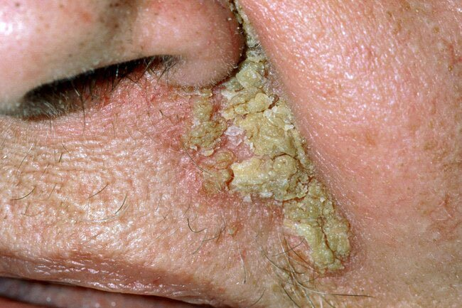 If you have sebaceous dermatitis, skin around oil glands (sebaceous glands) may redden.