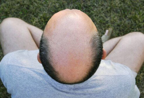 Hair Loss , Causes, Treatments and Solutions for Men & Women slideshow Hair-loss-s11-horse-shoe-hair-loss-top-view