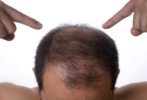 Hair Loss , Causes, Treatments and Solutions for Men & Women slideshow Hair-loss-s12-man-pointing-at-his-hair-loss