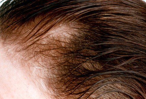 Hair Loss , Causes, Treatments and Solutions for Men & Women slideshow Hair-loss-s14-receding-hair-line