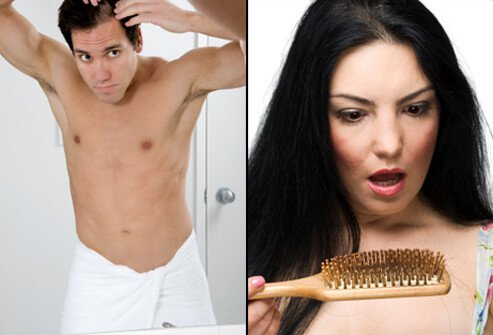 Hair Loss , Causes, Treatments and Solutions for Men & Women slideshow Hair-loss-s2-guy-checking-hair-woman-looking-at-brush