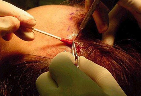 Hair Loss , Causes, Treatments and Solutions for Men & Women slideshow Hair-loss-s20-hair-plugs