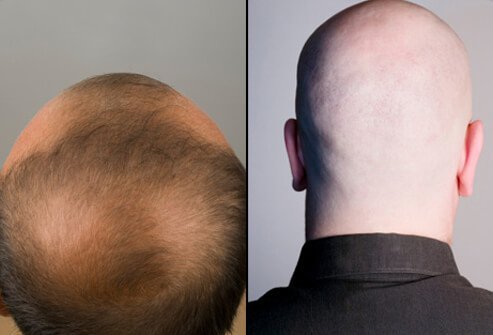 The man on the left has patchy bald spots while the man on the right is completely bald.