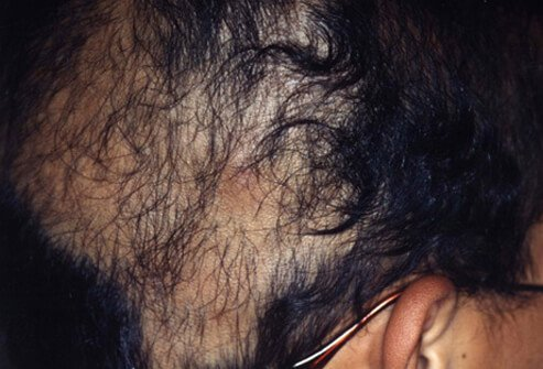 Hair Loss , Causes, Treatments and Solutions for Men & Women slideshow Hair-loss-s7-pulling-out-hair