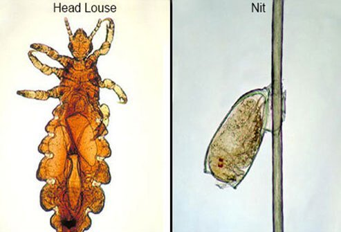 A head louse is attached to a hair shaft (left). An adult male head louse (right).
