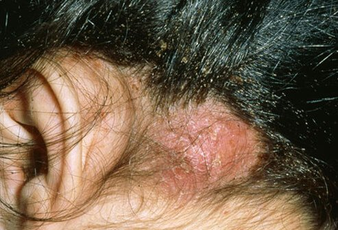 Photo of abscess from lice.