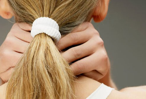 How you wear your hair can take a toll on your head.