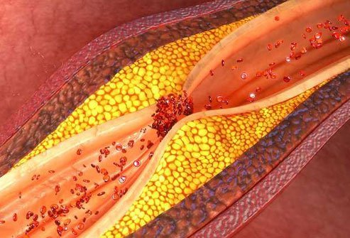Research on turmeric's ability to protect your ticker has been mixed.