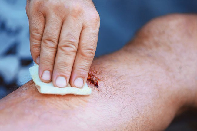 Hydrogen peroxide can help you clean and disinfect wounds.