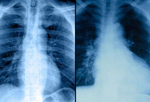 A chest X-ray can help determine if someone has an enlarged heart or buildup of fluid in the lungs due to heart failure.