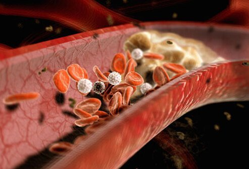 Ruptured plaques may trigger the formation of clots that block arterial blood flow.