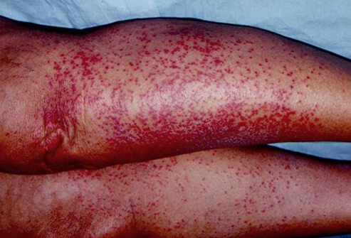 Picture of red heat rash (miliaria rubra), also known as prickly heat.