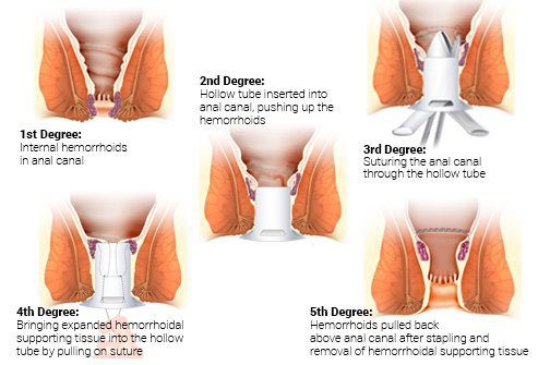 Illustrations show the steps in performing a stapled hemorrhoidectomy.