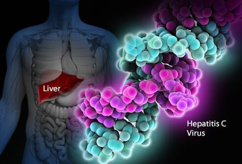 The liver in the human body and the hepatitis C (hep c) virus.