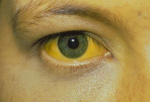 Photo of person with jaundice.