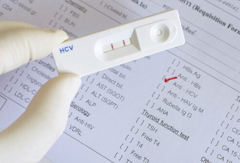 Detection of positive Hepatitis C virus (HCV) result by using test cassette.