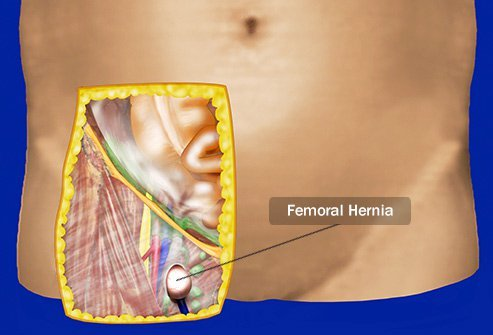 Femoral hernias are less common than inguinal hernias.
