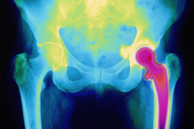 Hip replacement is an operation to repair a damaged hip joint.