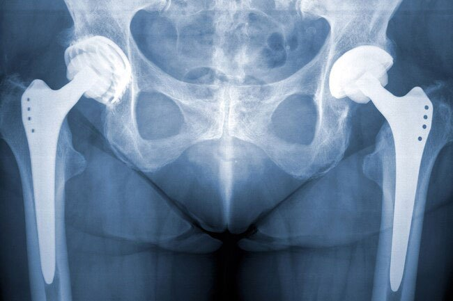 If you need both hips replaced, your surgeon may want to do them at the same time.