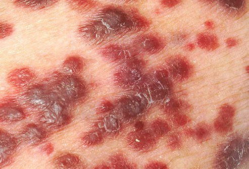 Kaposi's sarcoma is a skin cancer that may develop in AIDS patients.