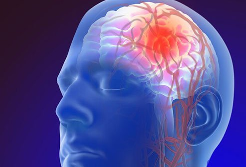 A stroke may affect the function of the brain depending on the location where it occurs.