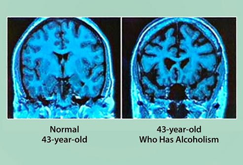 Longterm alcohol consumption may may damage the brain and cause it to shrink.