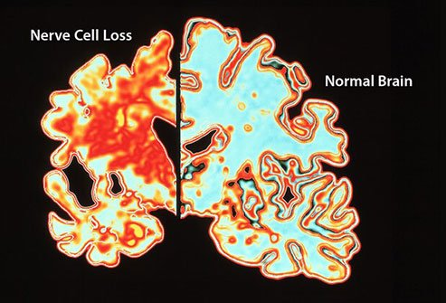 Alzheimer's causes disruption in the communication between neurons.