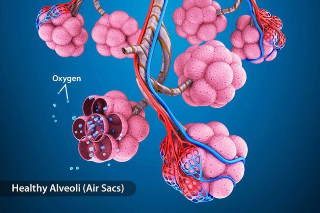 In acute respiratory distress syndrome (ARDS), your COVID-19 pneumonia gets worse quickly, and your body's response can damage your lungs more.