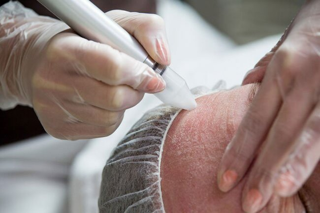 For this procedure, doctors use a rapidly spinning brush to sand down your spotted skin so new skin can replace it.