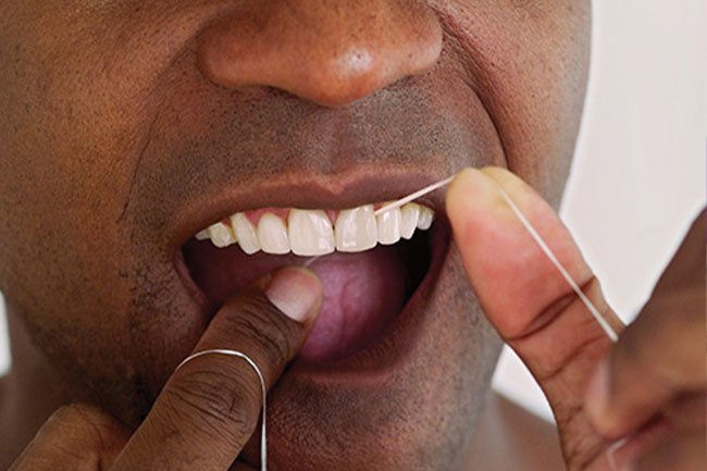 If you don't, your teeth may get yellow, and you may develop gum disease.
