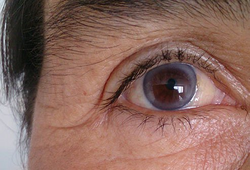 Arcus senilis is a ring of calcium and cholesterol that appears around the cornea of the eye.