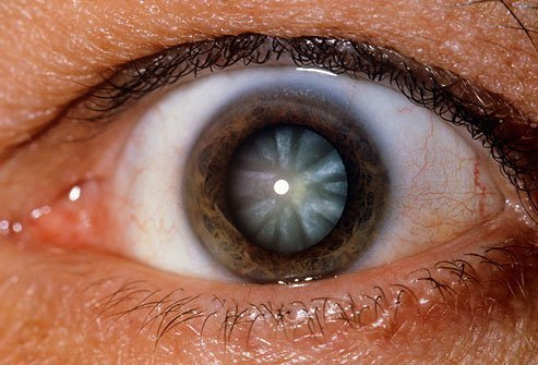 A cataracts is a cloudy growth that covers the lens of the eye.