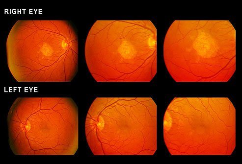 There are two types of macular degeneration.