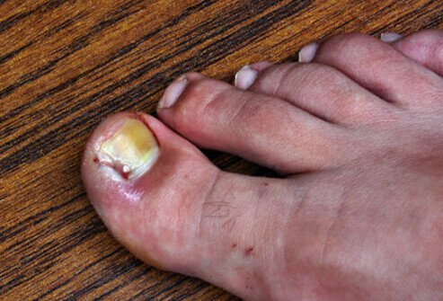 A painful and swollen toe with red skin from an ingrown toenail.