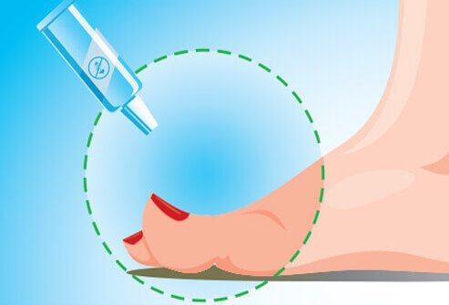A medical illustration of a toe and a cream treatment remedy for an ingrown nail.