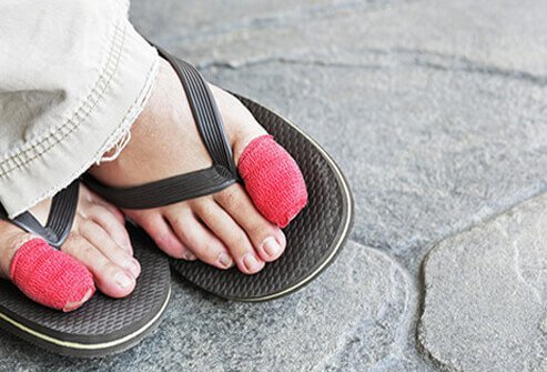 A woman's feet with bandaged big toes from ingrown toenail surgery.