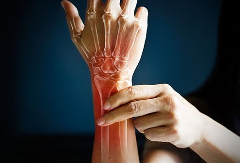 Aging can cause stiffness and lack of lubrication of joints.