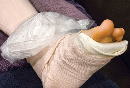 Injured joints can often recover completely with proper care.