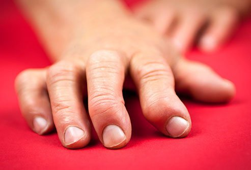 Rheumatoid arthritis causes painful swelling that can lead to permanent joint damage.