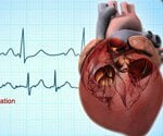 Atrial Fibrillation:Visual Guidelines to Causes, Tests and Treatment