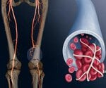 Deep Vein Thrombosis (DVT): Symptoms, Treatment & Prevention