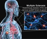 Multiple Sclerosis (MS) Symptoms, Treatment