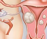 What Are Uterine Fibroids? Symptoms, Treatment, Pictures