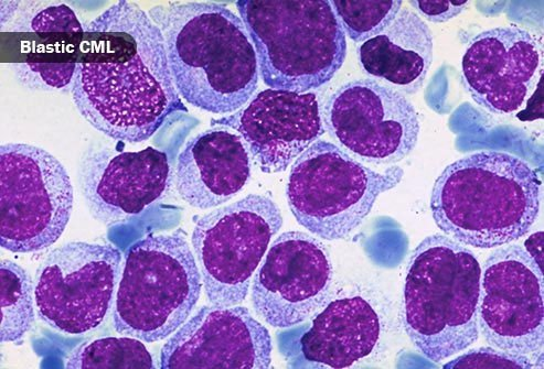 Unlike other cancers, stages of leukemia don't describe how far the cancer has spread.