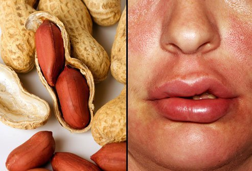 Peanuts are one of the most common cause of food-related allergy death.
