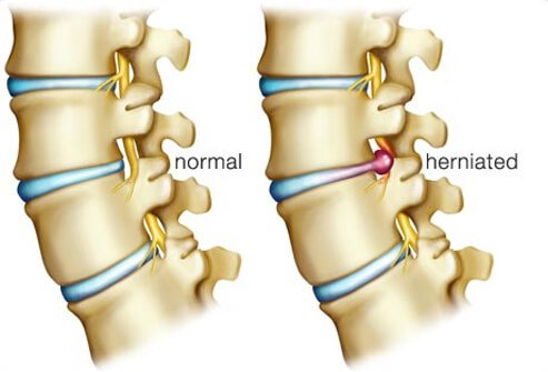 Illustration of a herniated disc.